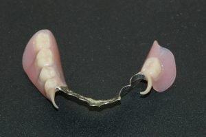 Partial Dentures 300x199