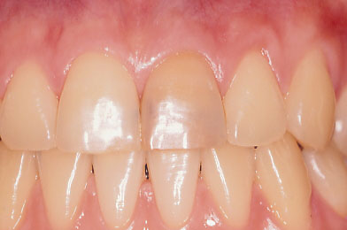 A.Discoloured Front Tooth