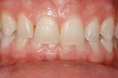 1. Gaps Between The Teeth