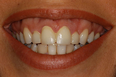 1.Smile Before With Excess Gum E1597933358748