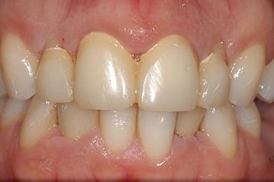 2.Gum After Crown Lengthening Surgery E1597933373609 1
