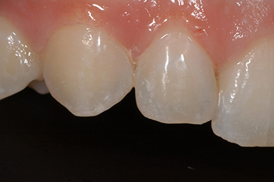 4. Gaps Closed With Composite Right Side