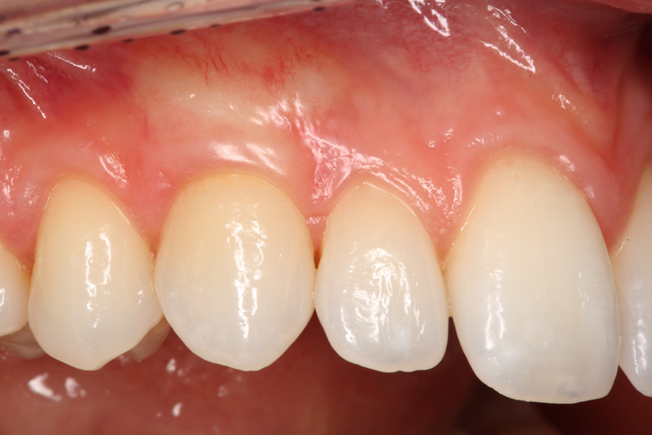 Implant Case 1 After