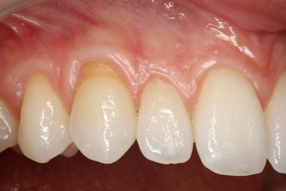 Implant Case 1 Before