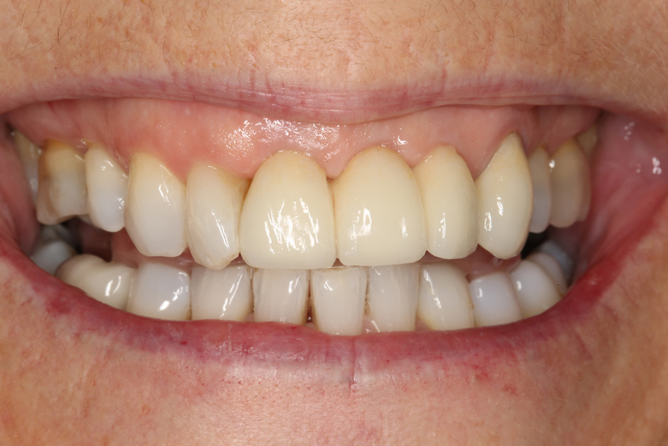 Implant Case 3 1 After