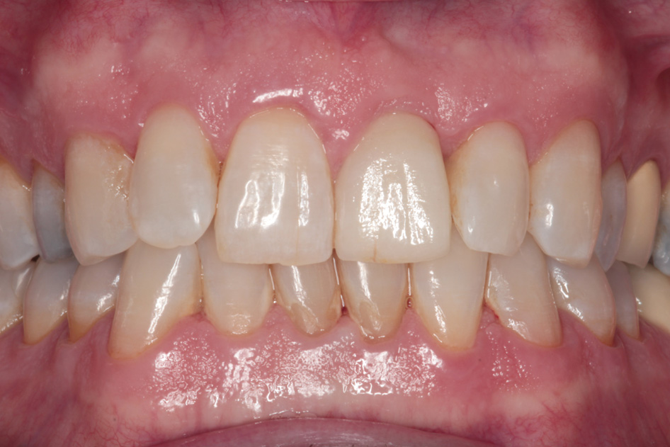 Implant Case 3 After