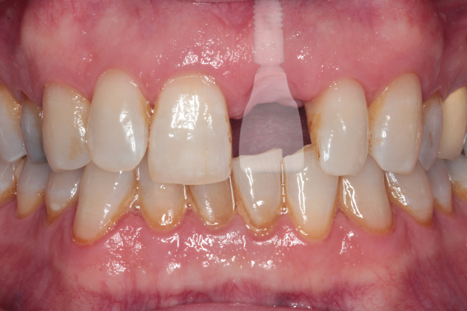 Implant Case 3 Before